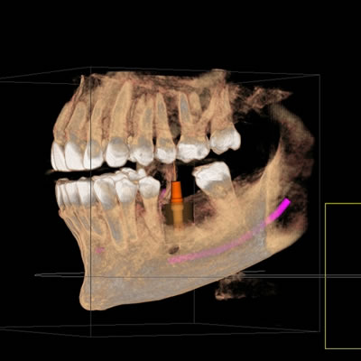 3 D x rays are the latest technological improvement for diagnosing dental conditions