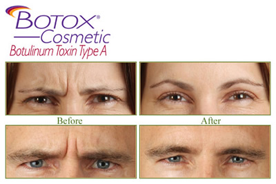 Botox® Cosmetic treatments also available