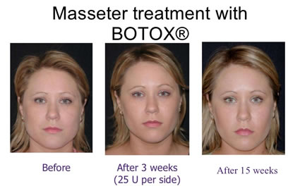 Masseter Treatment with Botox®