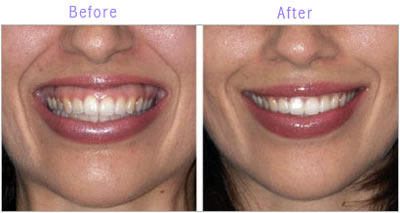 Botox-Therapeutic treatment of -Gummy smiles TMD